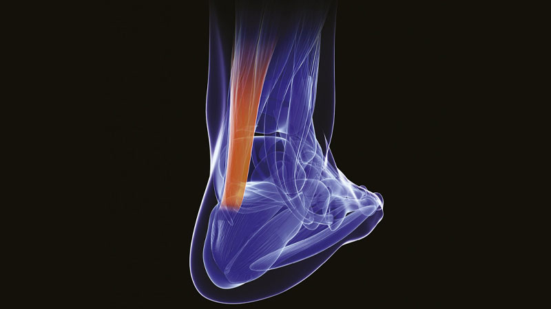 Self-testing for Achilles tendinopathy